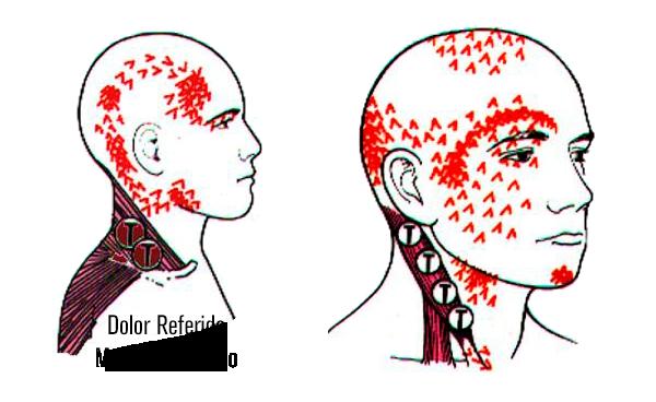 Dolor-referido-musculo-trapecio-sf