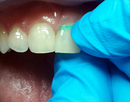 tecnica-hilo-dental-4